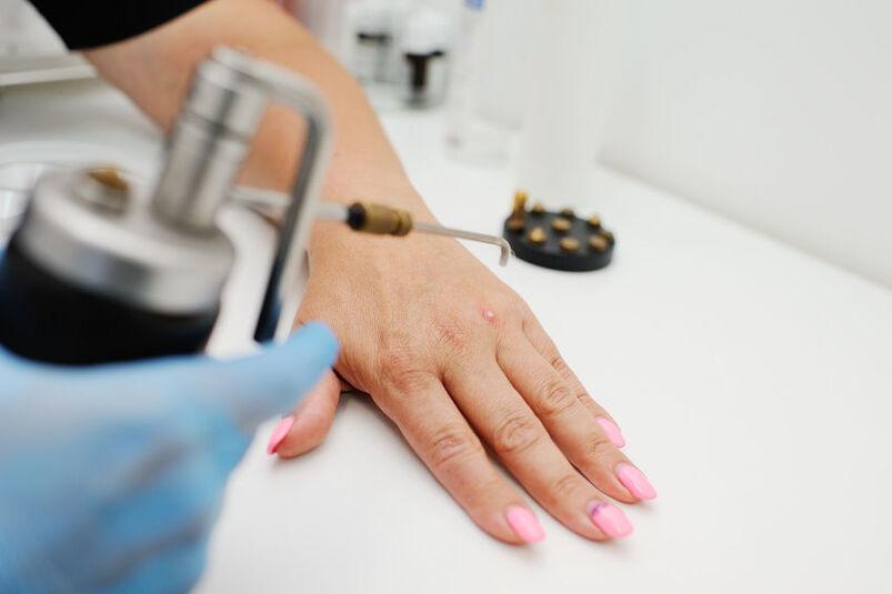 Kosmetyczka przystępuje do zabiegu wymrażania brodawek ciekłym azotem