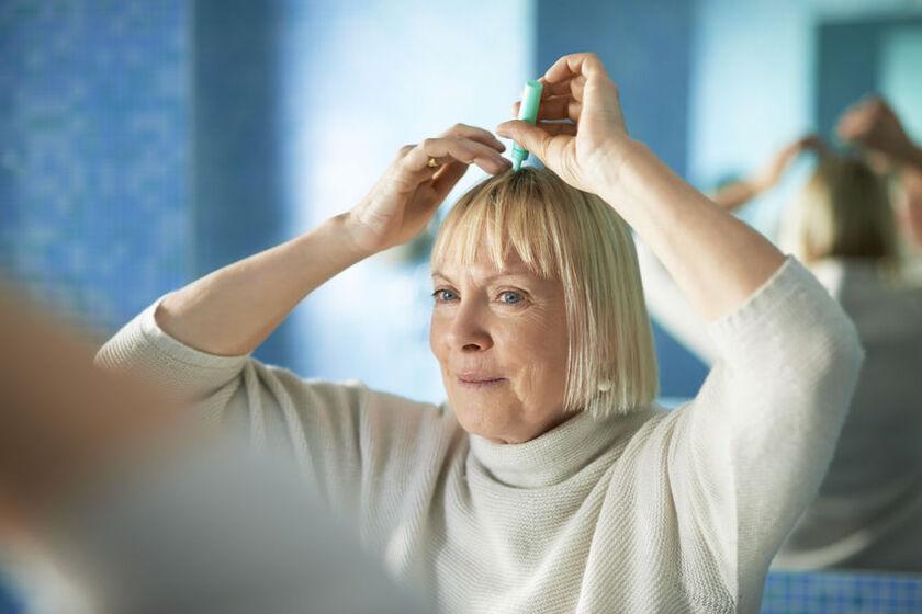 Kobieta stosuje preparat na łysienie androgenowe