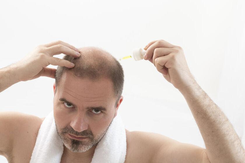 Mężczyzna testuje środek na wypadanie włosów