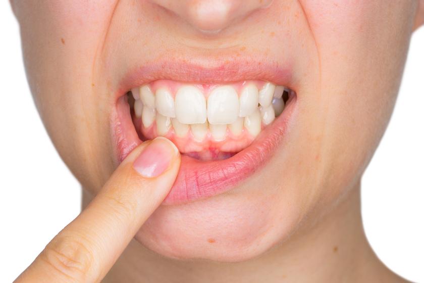 Chore zęby i dziąsła