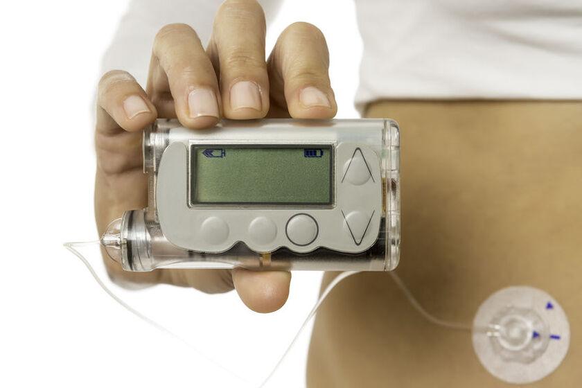 Kobieta z podłączoną pompą insulinową
