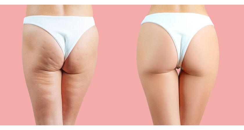 Kobieta przed i po stosowaniu olejku na cellulit
