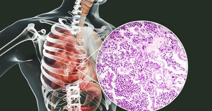 Objawy zarażenia pneumokokami u człowieka