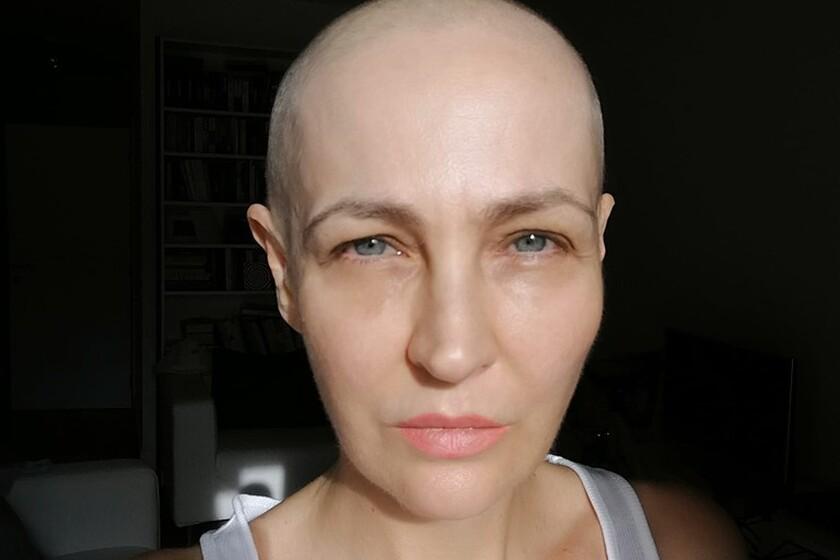 Kobieta z nowotworem piersi