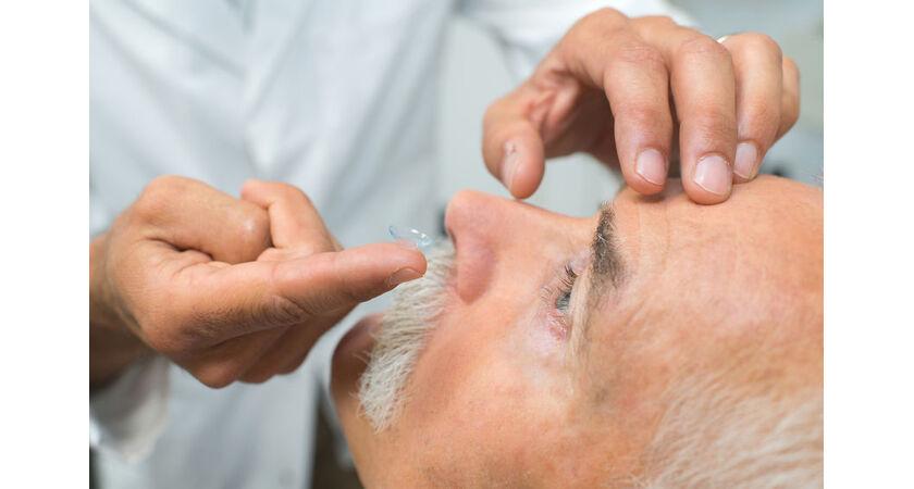 Lekarz wkłada pacjentowi twarde soczewki