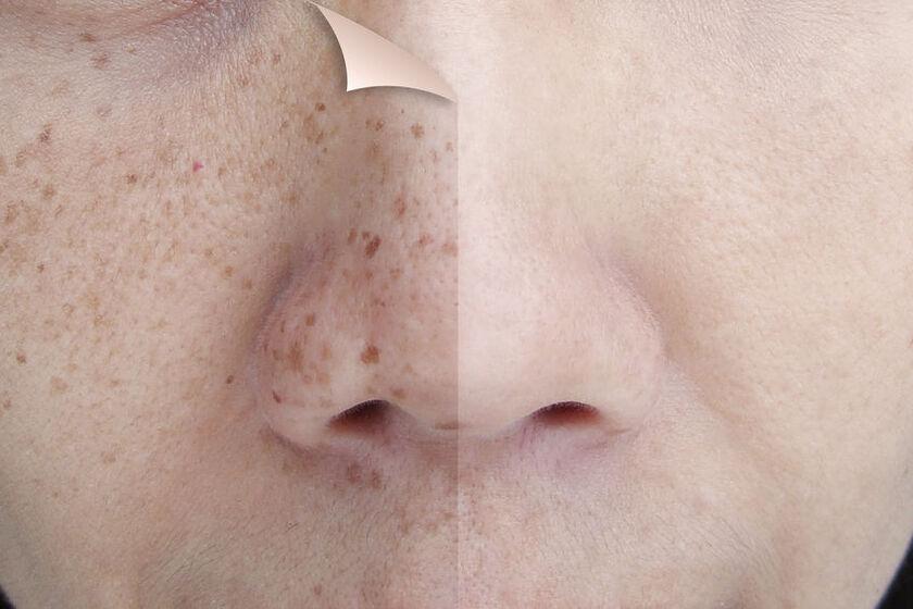 Twarz przed i po zastosowaniu serum na przebarwienia