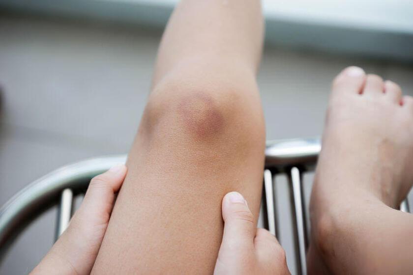 Spuchnięte kolano