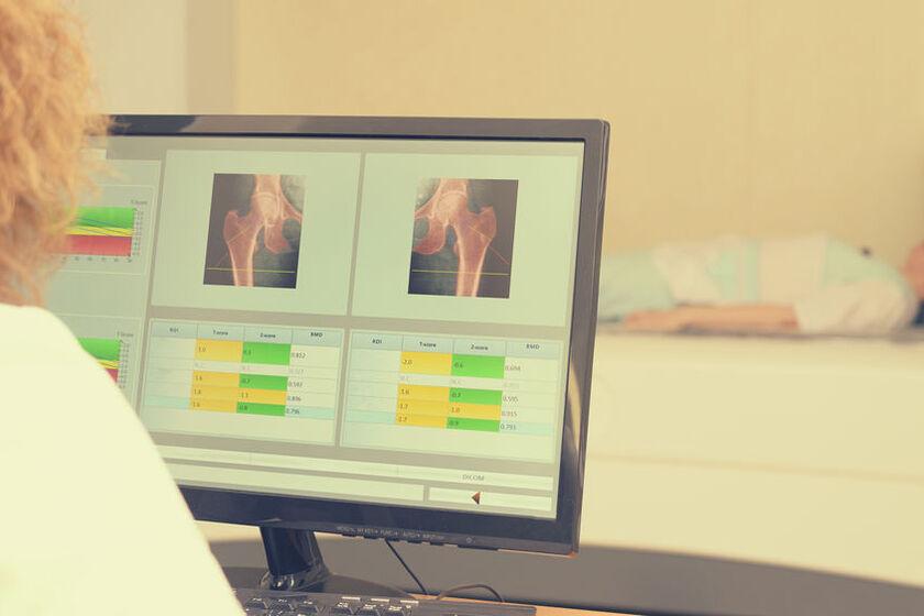 Lekarz wykonuje badanie na osteoporozę