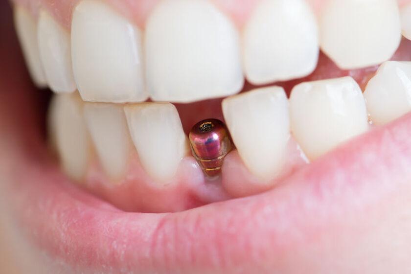 Uśmiech z widocznym ubytkiem zęba