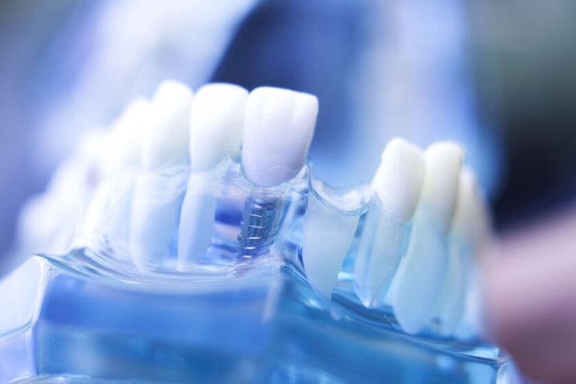 Model pokazujący jak zakłada sięimplant zęba