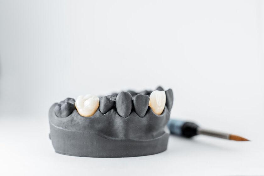 Model protetyczny z porcelanowymi koronami zębowymi