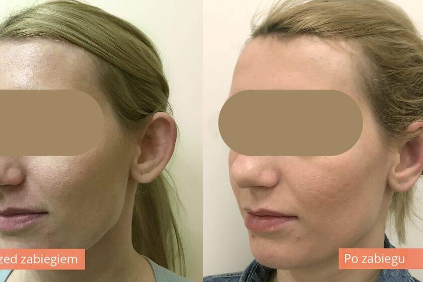 Korekcja uszu efekty
