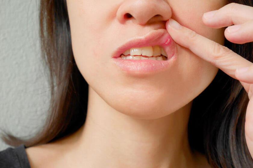 Rany w jamie ustnej