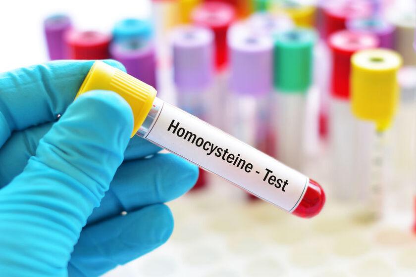 Naukowiec wykonuje test na stężenie homocysteiny