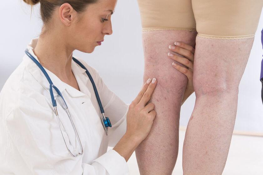 Lekarz sprawdza krążenie w nogach u pacjentki