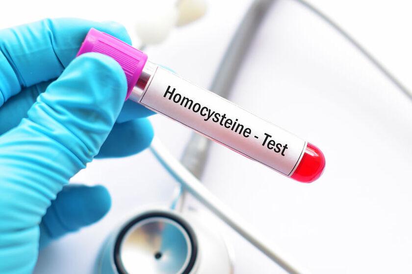 Badanie homocysteiny