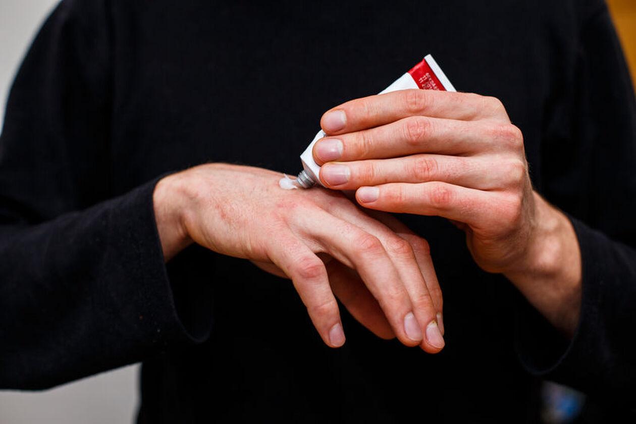 Mężczyzna smaruje dłonie maścią na egzemę