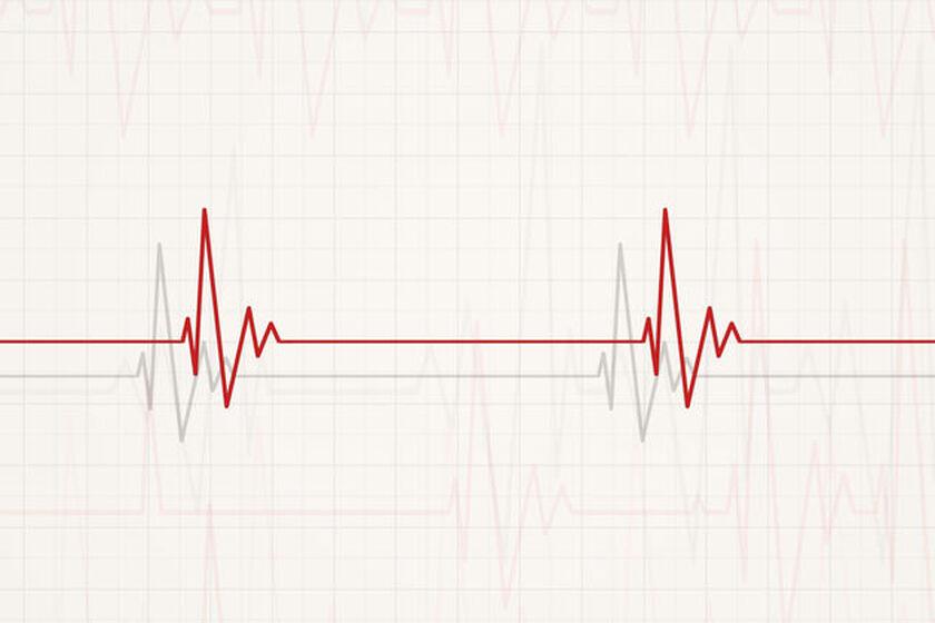 Wykres z badania EKG ukazujący bradykardię