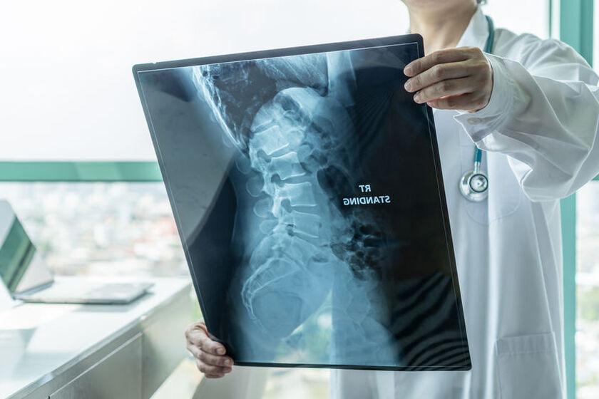 Lekarz ogląda zdjęcie RTG kręgosłupa