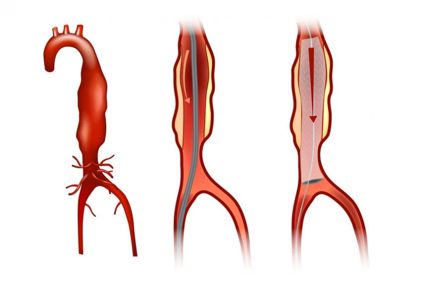 Wizualizacja tętniaka aorty brzusznej