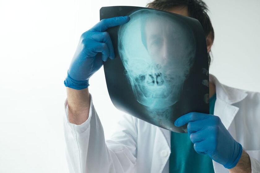 Lekarz diagnozuje kostniaka czaszki