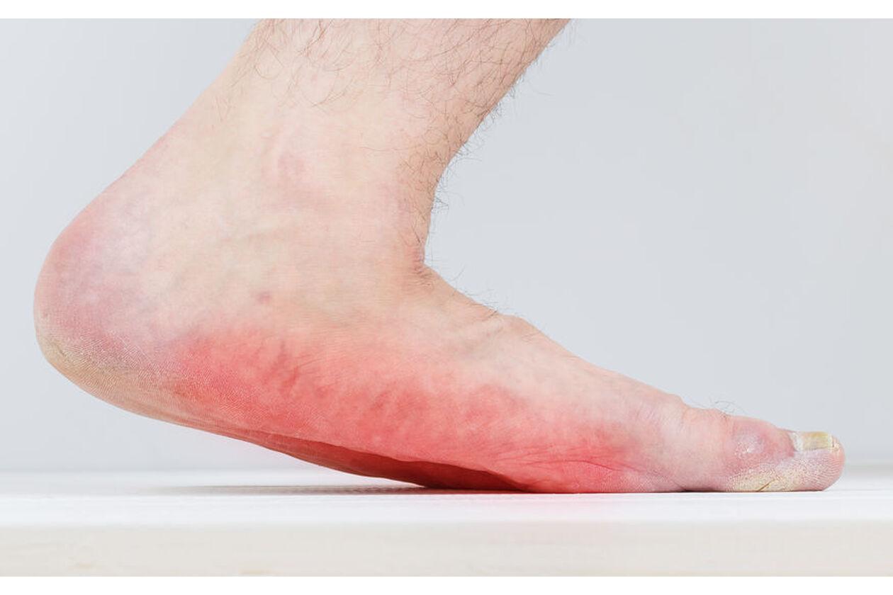 Stopy z grzybicą