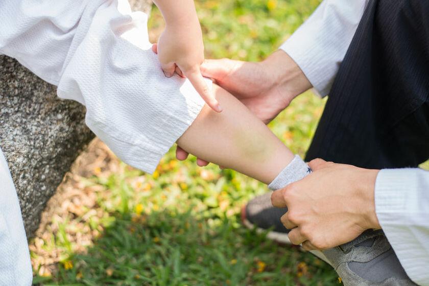 Dziecko pokazuje siniaki na nogach
