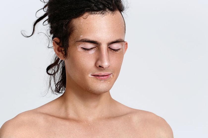 Mężczyzna z białymi plamami na ciele