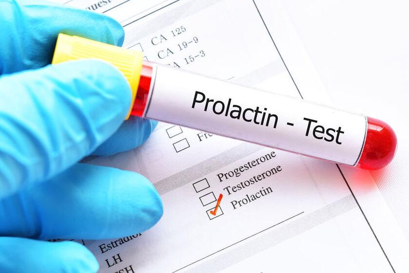 Próbka krwi do badania prolaktyny
