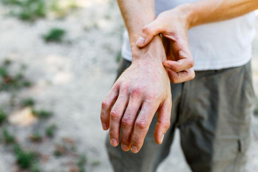 Suche plamy na dłoniach