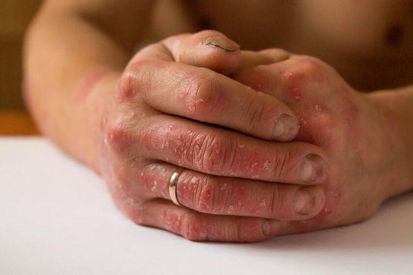 Mężczyzna z czerwonymi dłońmi