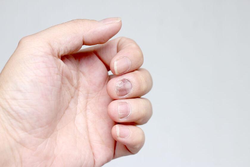 Dłoń z przebarwieniami na paznokciach