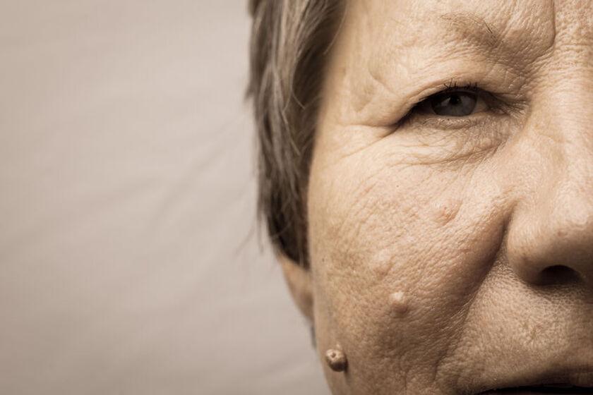 Kobieta z naroślami na skórze twarzy