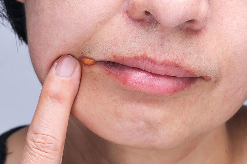 Kobieta z popękanymi kącikami ust