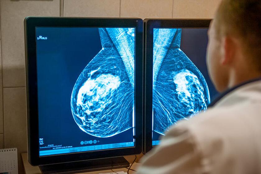 Lekarz diagnozuje guza piersi