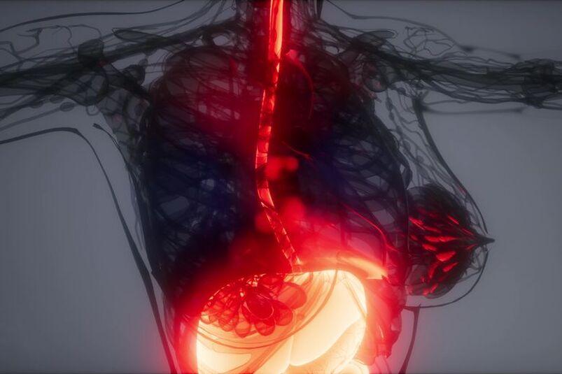 Wizualizacja eozynofilowego zapalenia przełyku
