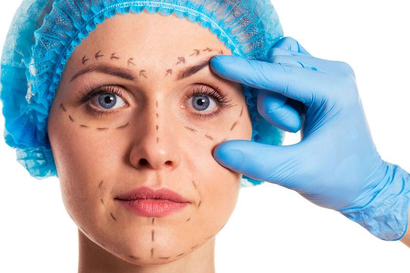 Pacjenta przed operacją plastyczną
