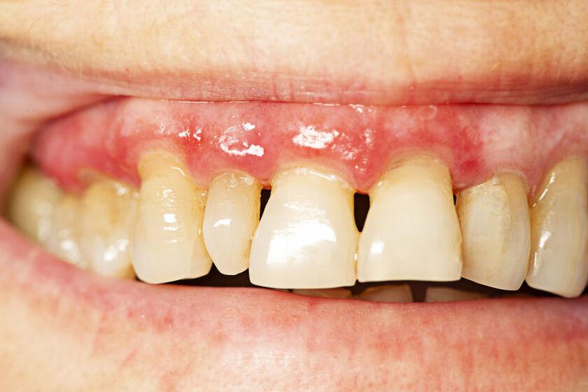Zęby zaatakowane parodontozą