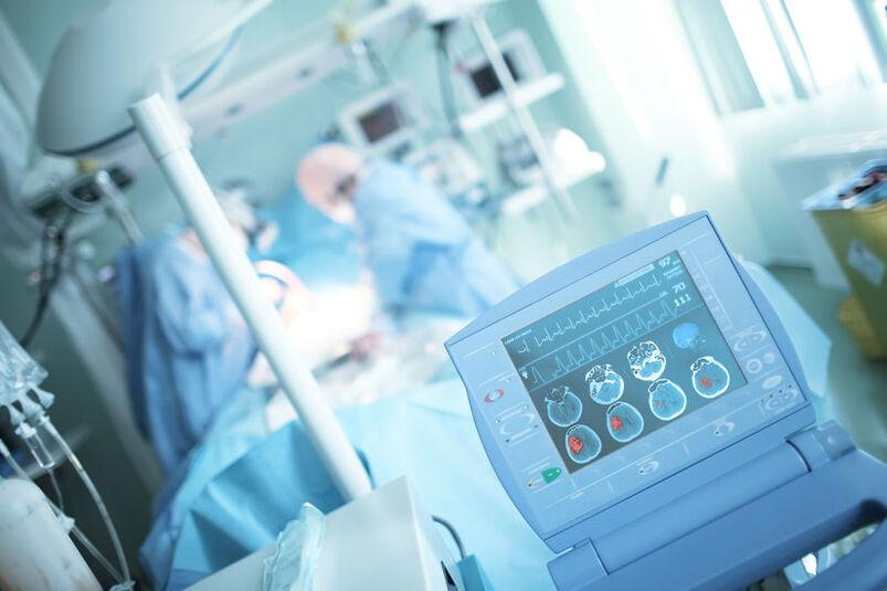 Neurochirurdzy przy pracy