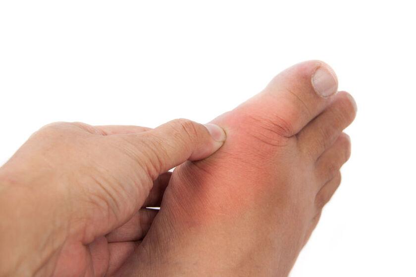 Bolące stopy