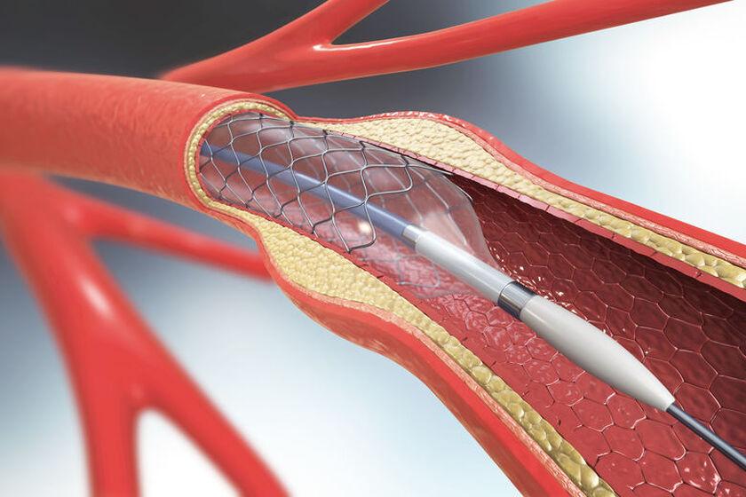 Stent w naczyniu krwionośnym