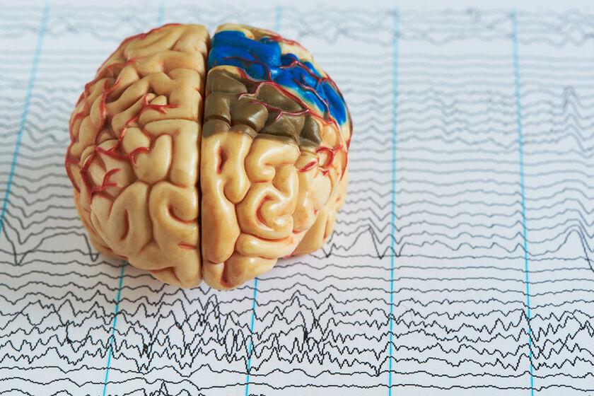 Model mózgu i wynik badania EEG
