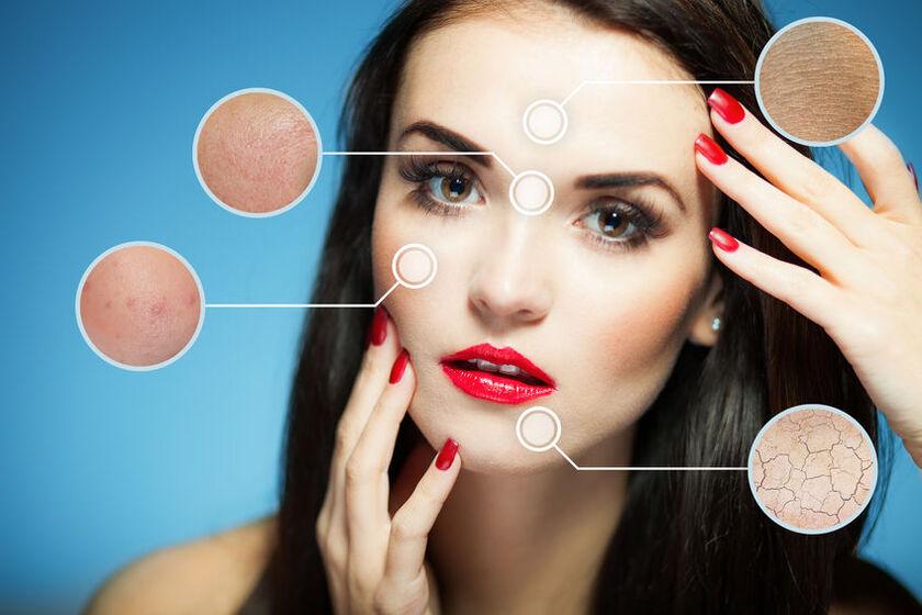 Kobieta z problemami skórnymi na twarzy