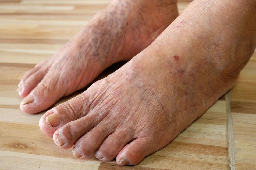 Przebarwienia na stopach