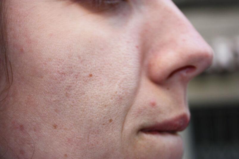 Młoda kobieta z przebarwieniami na twarzy