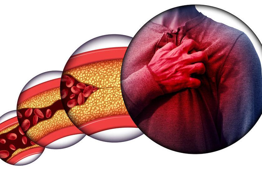 Miażdżyca - schemat powstawania i skutków choroby