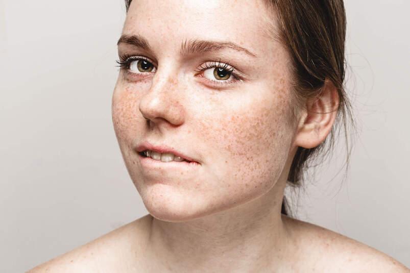 Kobieta z przebarwieniami na skórze