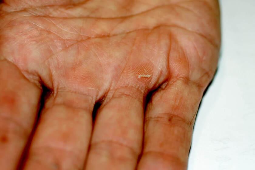 Mężczyzna z odciskami na dłoniach