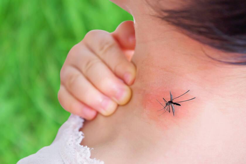 Uczulenie na komary na szyi