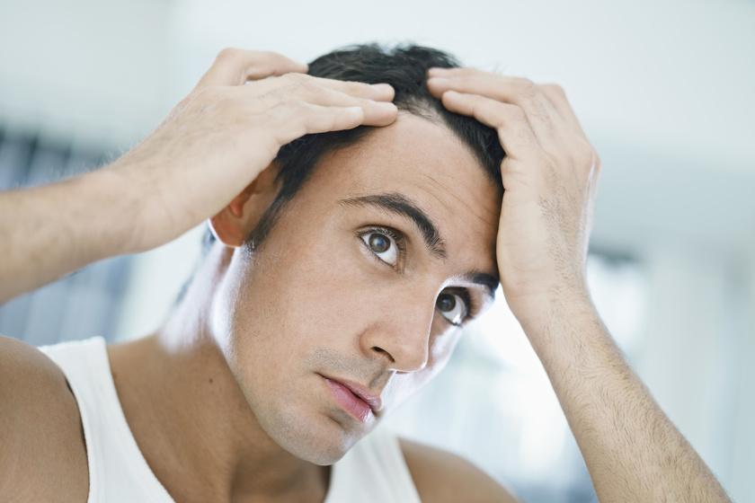 Mężczyzna z przerzedzonymi włosami